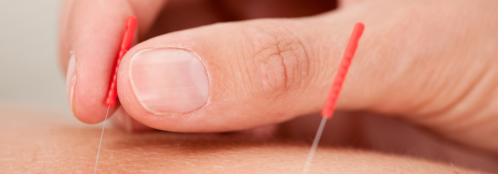 acupuncture frequently asked questions